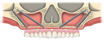 Implants zygomatiques 2