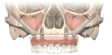 Implants zygomatiques 3