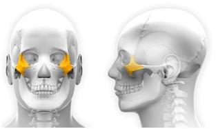 Implants zygomatiques saint jean de vedas